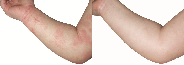 http://www.vitaminbutiken.se/media/arm-before-after.jpg